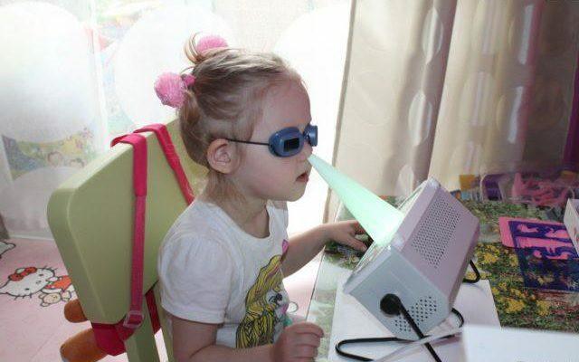 Лечение синусита кварцевой лампой с применением защитных очков.